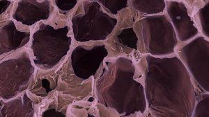 Empty fat cells.